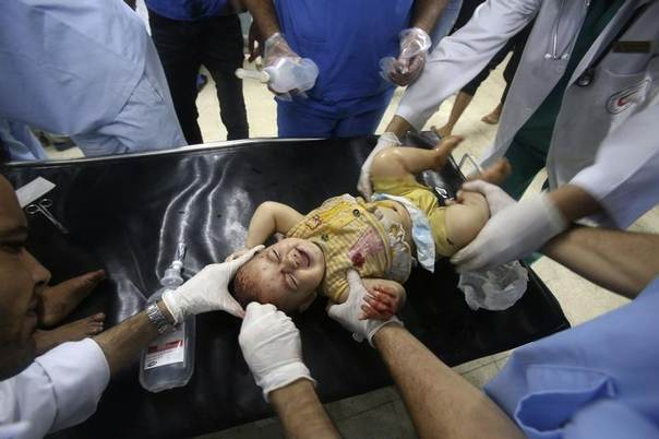 A Palestinian child, whom medics said was wounded in an Israeli air strike, receives treatment at a hospital in Khan Younis in the southern Gaza Strip July 30, 2014. REUTERS/Ibraheem Abu Mustafa