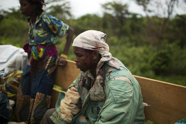 An injured man sits after the armed peacekeeping convoy from the African Union operation in CAR (MISCA) came under attack by anti Balaka militiamen as they were travelling from the capital Bangui to the northern towns of Kabo and Sido on the border with Chad, close to the village of Dekoua, April 28, 2014. REUTERS/Siegfried Modola