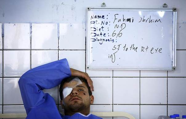 A man, who was injured during a suicide bomber attack in Mwafaqiya village at Mosul, lies in a hospital bed after he was brought for treatment in a hospital in Arbil, the capital of the autonomous Kurdistan region, June 6, 2014. REUTERS/Stringer