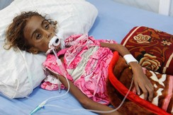 Malnourished girl Jamila Ali Abdu, 7, lies on a hospital bed before she died