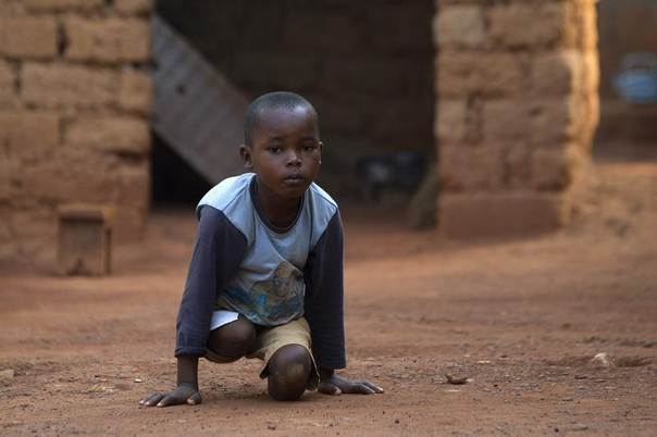 Giovanni Mougounou, 10, who lost both legs in April 2013 to what his family said was a rocket-propelled grenade launched by Seleka fighters on a church, crawls on the ground close to his home in the capital Bangui February 4, 2014. REUTERS/Siegfried Modola