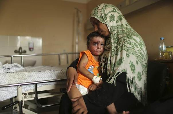 Palestinian boy Mohammed Wahdan, whom medics said was wounded in Israeli shelling, is held by his aunt as he receives psychological care at Shifa hospital in Gaza City August 14, 2014. REUTERS/Mohammed Salem