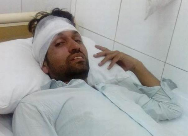 Azam Khan, journalist at Express Tribune who freelances for Thomson Reuters Foundation, was treated for head injuries after he was attacked while covering anti-government protests in Islamabad, on Aug. 31, 2014.